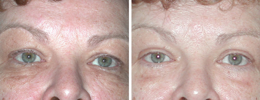 "60 years old, 5'2"", 150lbs, upper and lower eyelid lift"