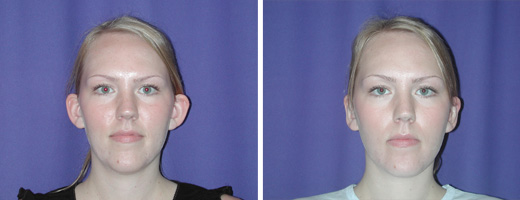 24 yrs old, Otoplasty to Improve Prominent Ears