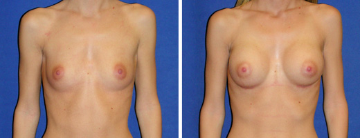 "19 years old, 5'6"", 112lbs, 300cc Silicone/Gel Implants, Preop 34B to Postop 34D"