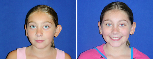 10 yrs old, Otoplasty to Improve Prominent Ears