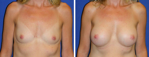 """53 years old, 5'3"""", 115lbs, 300cc Silicone/Gel Implants, Preop 34B to Postop 34C"""