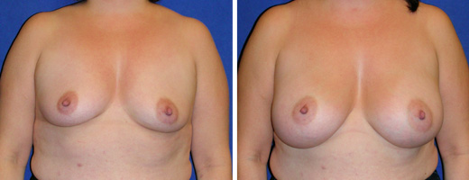 "43 years old, 5'3"", 162lbs, 400cc Silicone/Gel Implants, Preop 36B to Postop 38C"
