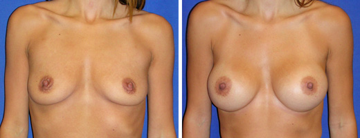 "31 years old, 5'5"", 114lbs, 375cc Silicone/Gel Implants, Preop 34B to Postop 34D"