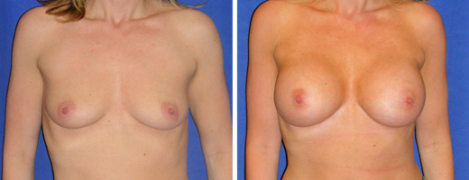 """32 years old, 5'4"""", 115lbs, 375cc Silicone/Gel Implants, Preop 34A to Postop 34D"""