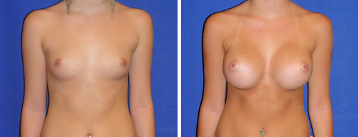 "18 years old, 5'7"", 128lbs, 350cc Silicone/Gel Implants, Preop 34A to Postop 34C"