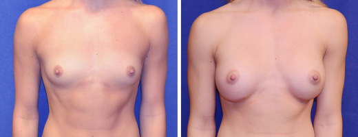 7689 breast augmentation st charles plastic surgery dr ghaderi featured