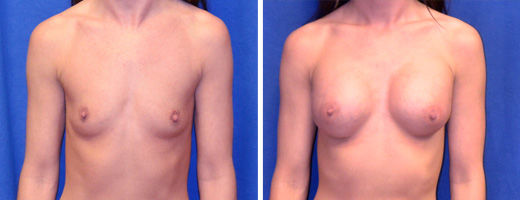 "32 years old, 5'5"", 113lbs, 350cc Silicone/Gel Implants, Preop 32A to Postop 32C"