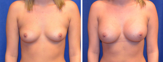 "23 years old, 5'2"", 125lbs, 375cc Silicone/Gel Implants, Preop 34B to Postop 34D"