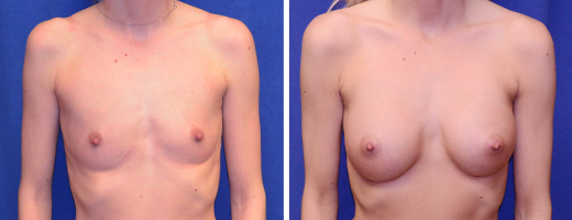 8013 breast augmentation st charles plastic surgery dr ghaderi featured