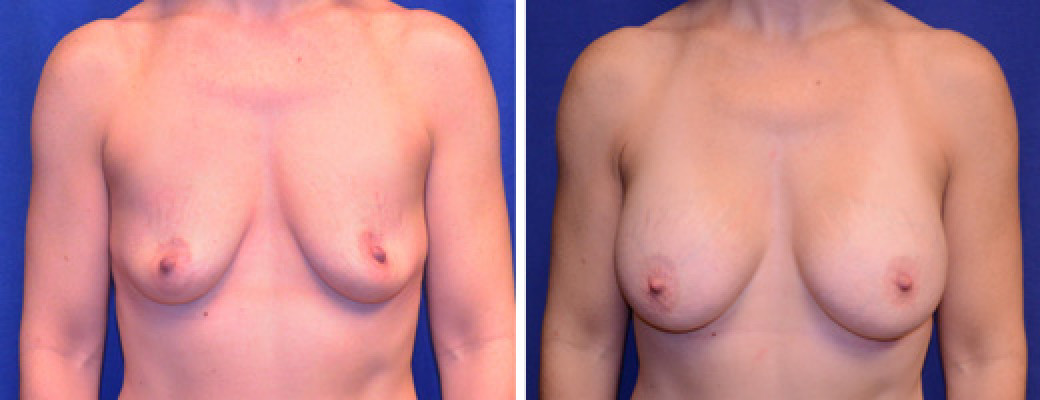 "46 years old, 5'5"", 140lbs, 375cc Silicone/Gel Implants, Preop 34A to Postop 34DD"
