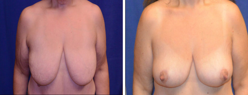 """46 yrs old, 5'4"""", 288lbs Pre-bariatric, 168lbs  Post-Bariatric, Breast Reduction"""
