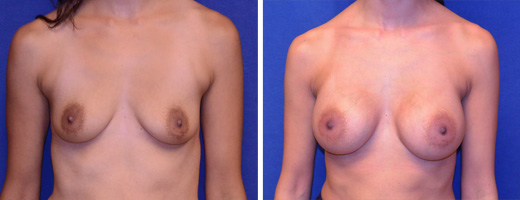 8298 breast augmentation st charles plastic surgery dr ghaderi featured