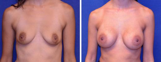 Breast Augmentation – Silicone/Gel