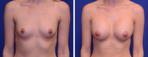 "26 years old, 5'7"", 116lbs, 375cc Silicone/Gel Implants, Preop 32A to Postop 32C"