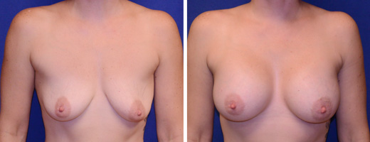 """40 years old, 5'6"""", 150lbs, 400cc Silicone/Gel Implants, Preop 36B to Postop 34DD"""