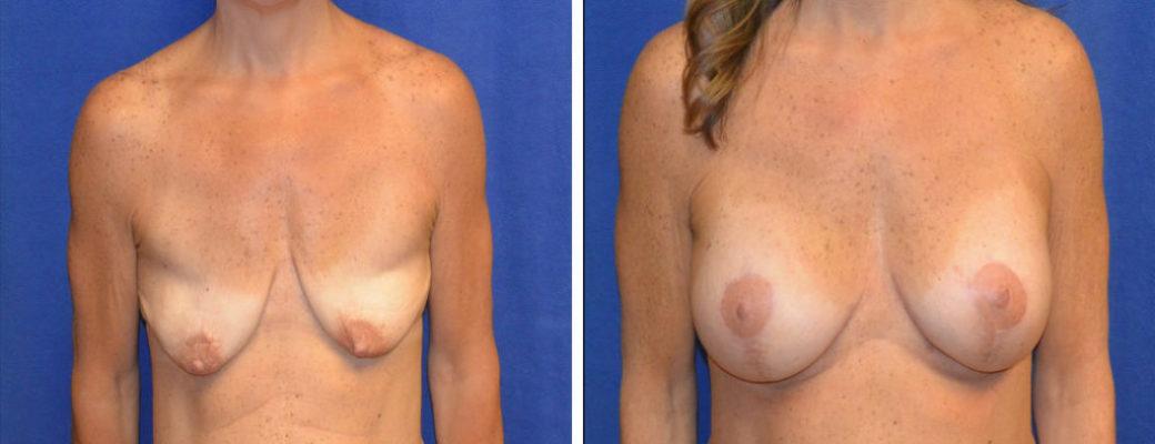 "52 yrs old, 5'1"", 213lbs Pre-bariatric, 138lbs Post-Bariatric,  Breast Augmentation & Breast Lift"