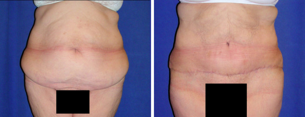 60 yrs old, 5'10, 333lbs Pre-bariatric, 233lbs Post-Bariatric, Tummy Tuck