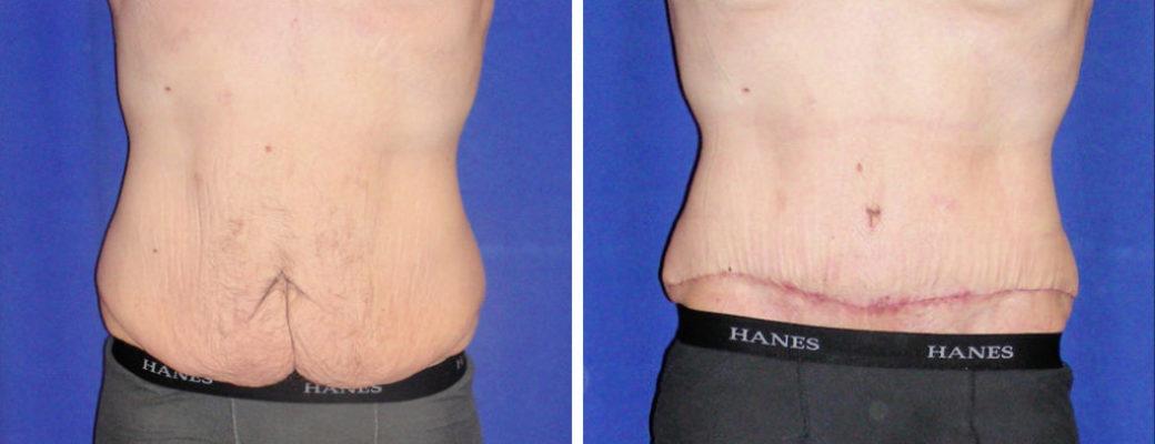 37 yrs old, 445lbs Pre-bariatric, 195lbs Post-Bariatric, Tummy Tuck