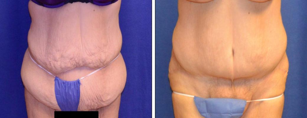 "46 yrs old, 5'4"", 288lbs Pre-bariatric, 168lbs Post-Bariatric, Tummy Tuck"