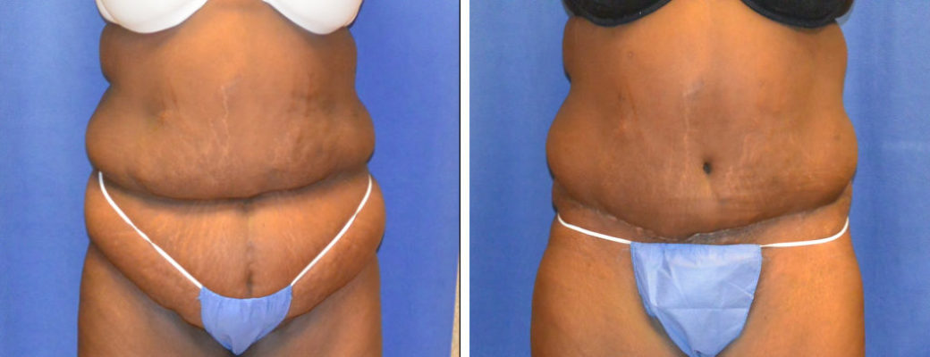 42 yrs old, 5'5lbs, 311lbs Pre-bariatric, 236lbs Post-Bariatric, Tummy Tuck