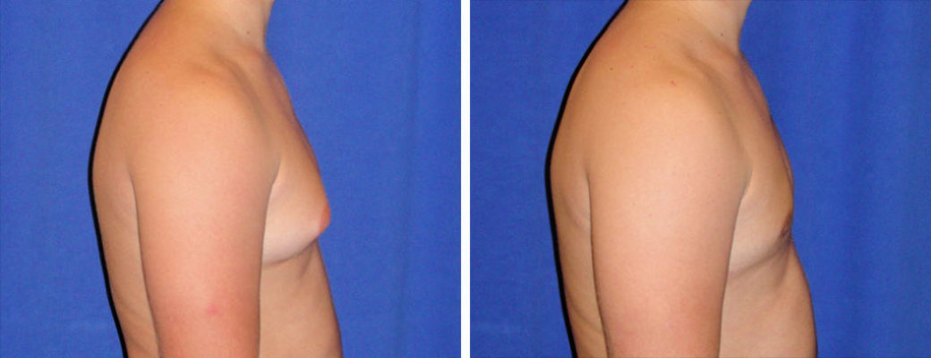 "22 years old, 5'9"", 185, liposuction removal of 550gms excess male breast tissue, excision excess male breast tissue"