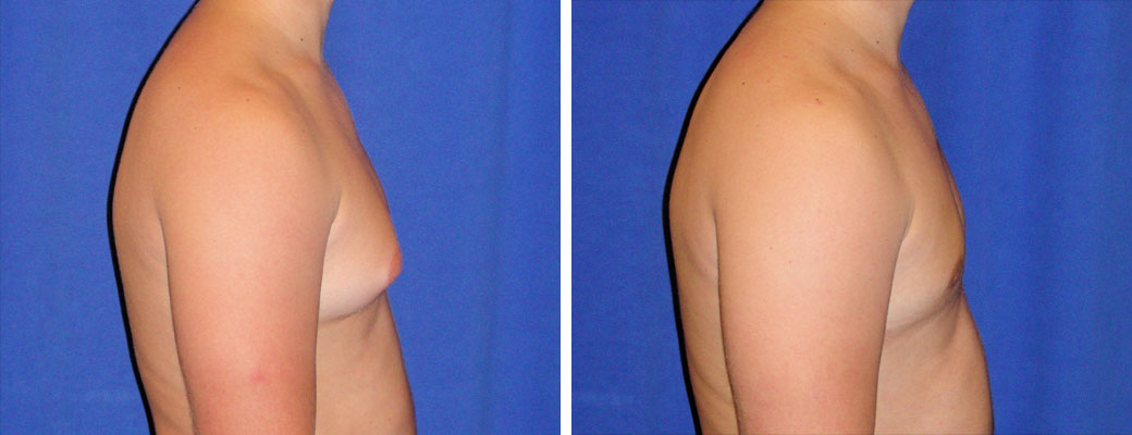 """22 years old, 5'9"""", 185, liposuction removal of 550gms excess male breast tissue, excision excess male breast tissue"""