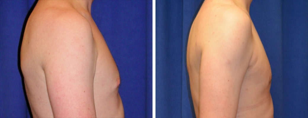 "25 years old, 6'0"", 195lbs, excision of right breast excess breast tissue"
