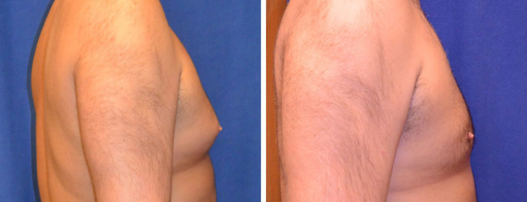 "40 years old, 6'0"", 260lbs, liposuction removal of 775gms excess male breast tissue"