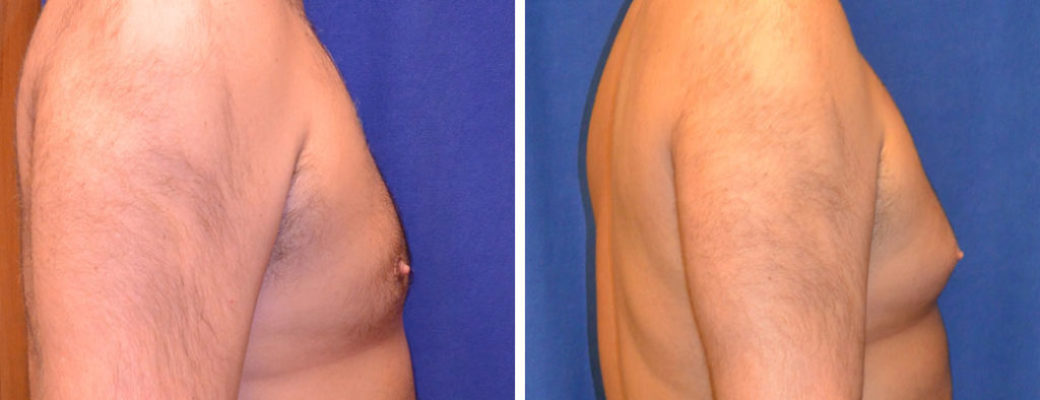 """40 years old, 6'0"""", 260lbs, liposuction removal of 775gms excess male breast tissue"""
