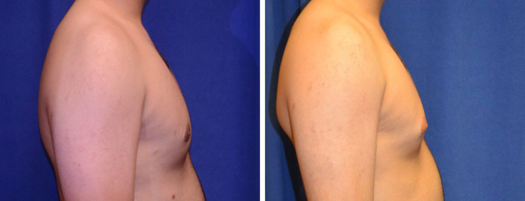 """20 years old, 5'9"""", 195lbs, excision of excess male breast tissue"""