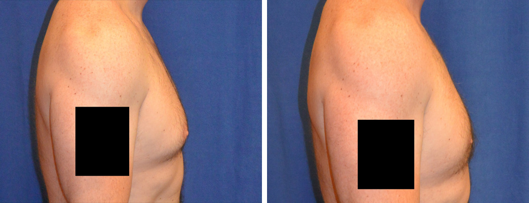 """39 years old, 5'10"""", 190lbs, liposuction removal of 750gms excess male breast tissue"""