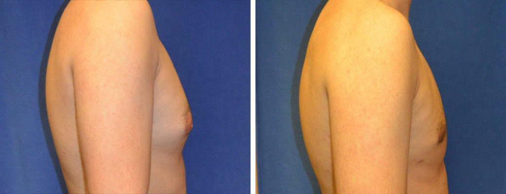 "22 years old, 6'1"", 185 lbs, liposuction removal of 600gms excess male breast tissue, excision excess male breast"