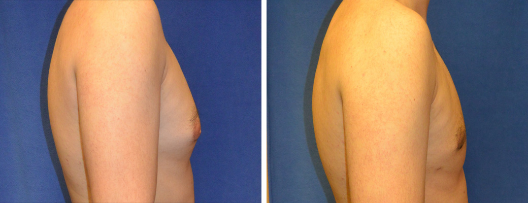 """22 years old, 6'1"""", 185 lbs, liposuction removal of 600gms excess male breast tissue, excision excess male breast"""