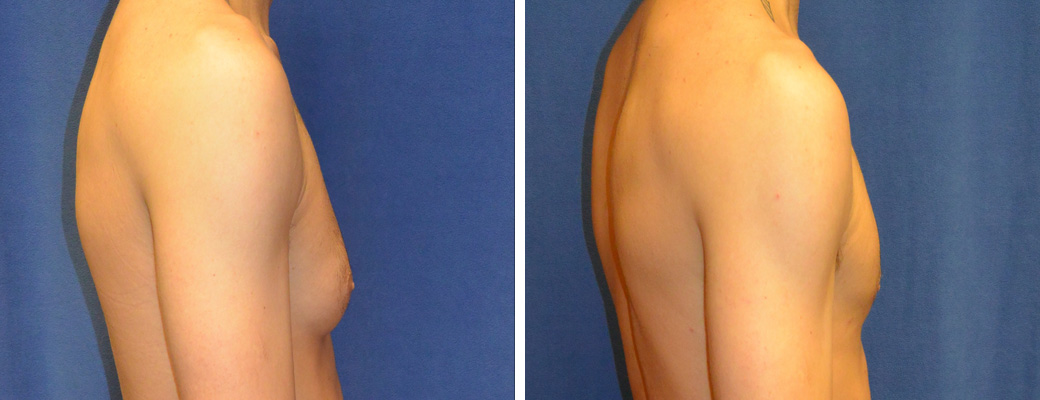 "29 years old, 5'8"", 155lbs, excision of right breast excess breast tissue"