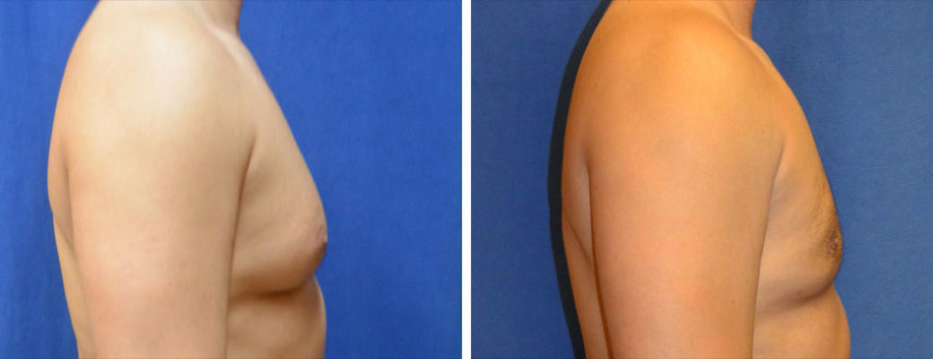 "43 years old, 5'9"", 180lbs, liposuction removal of 825gms excess male breast tissue, excision excess male breast"