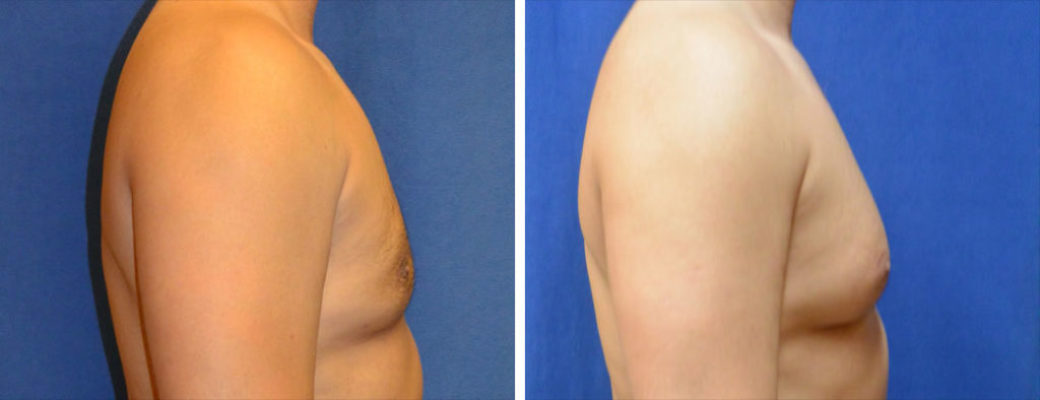 """43 years old, 5'9"""", 180lbs, liposuction removal of 825gms excess male breast tissue, excision excess male breast"""