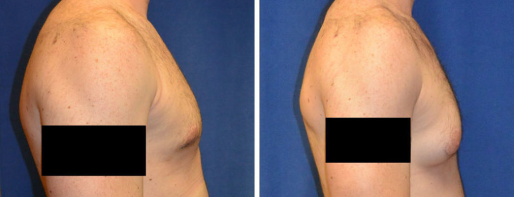 """30 years old, 6'5"""", 225lbs, liposuction removal of 275gms excess left breast male breast tissue, excision excess breast tissue"""