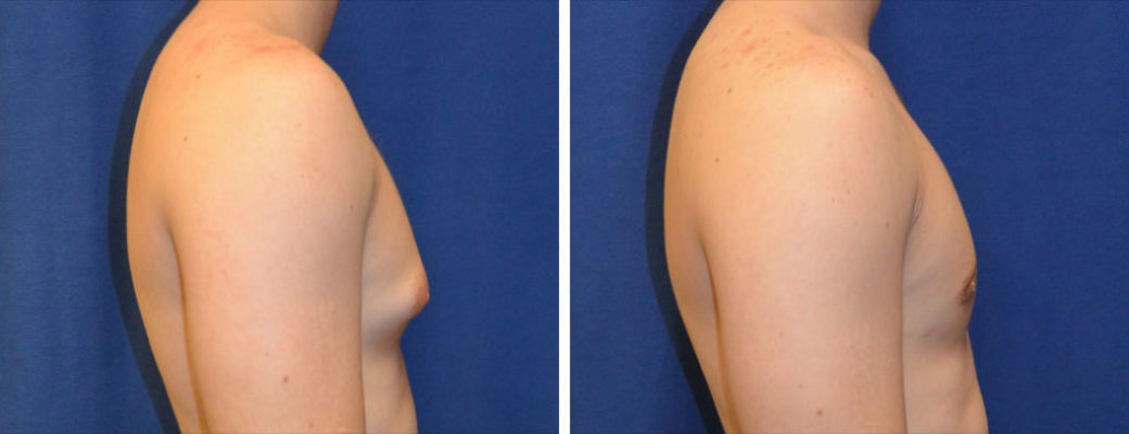 "19 years old, 5'9"", 179lbs, liposuction removal of 500gms excess male breast tissue, excision excess male breast"