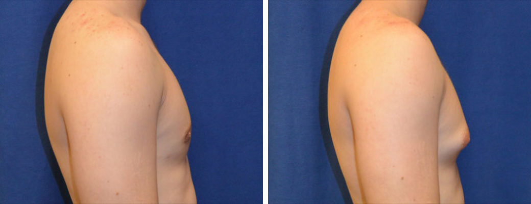 """19 years old, 5'9"""", 179lbs, liposuction removal of 500gms excess male breast tissue, excision excess male breast"""
